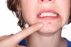 Le point sur l'acné, cauchemar des adolescents !