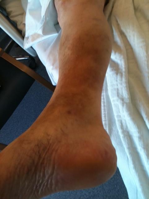 Voilà une jambe que je traite en hospice avec l'immortelle. Là, c'est 2 jours de massage, avec une réelle amélioration