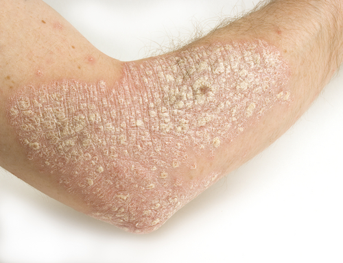 Le Psoriasis au naturel : on fait comment
