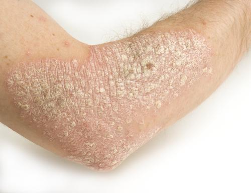 Que graisser la peau à leczéma