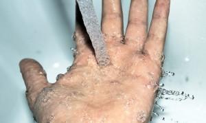 refroidir brulure eau