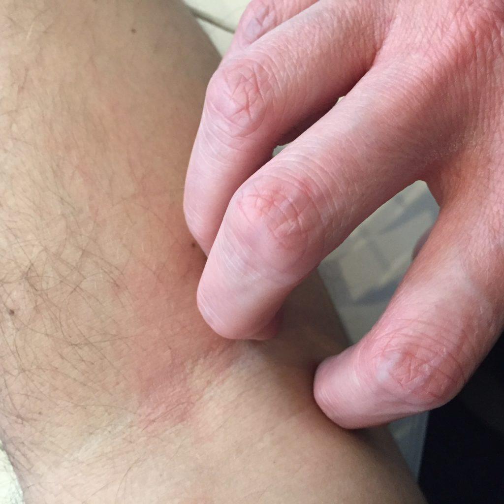 eczema démangeaisons