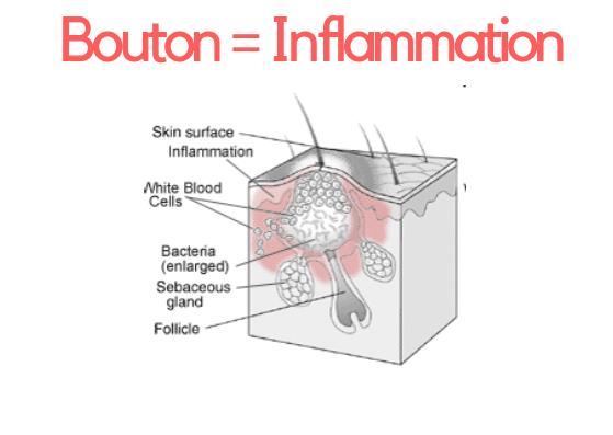 inflammation bouton visage