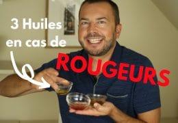3 huiles végétales anti-rougeurs
